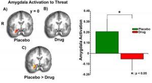 На томографическом снимке и  диаграмме видно, что при приеме ТГК реакция мозга пациентов, употребляющих марихуану, на угрозу была гораздо менее выраженной, чем при приеме плацебо. (кликните картинку для увеличения)