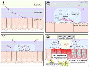 Схема разрушения желудочной стеники бактериями H. pylory. (кликните картинку для увеличения)