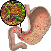 Колония Хеликобактер пилори (<i>Helicobacter pylori</i>) на слизистой оболочке желудка (http://www.helicobacter.ru/)