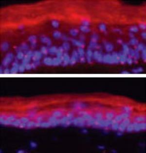верхней части рисунка показаны клетки кожи, в которых имеются белки TCF3 и TCF4. Видно, что при наличии этих белков происходит замещение старых клеток кожи новыми. В нижней части рисунка представлены клетки кожи, которые не содержат упомянутых выше белков. Видно, что процесс замещения клеток не происходит. (http://www.sciencedaily.com/)