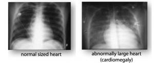 Ненормальное увеличение размеров сердца, диагностируемое у людей, страдающих хронической сердечной недостаточностью (справа). Нормальный размер сердца человека (слева). (кликните картинку для увеличения)