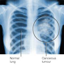 Рентгеновский снимок лёгких пациента, у которого обнаруживается рак данного органа. В правой части рисунка видны новообразования, в то время как в левой части рисунка видно нормальное лёгкое.