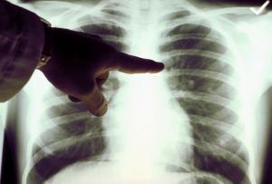 Курение – одна из основных причин развития рака лёгких. (кликните картинку для увеличения)