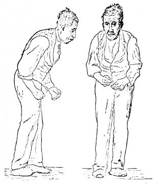Вид человека, страдающего от болезни Паркинсона. (кликните картинку для увеличения)