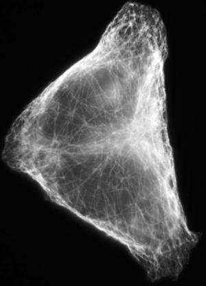 Сеть микроканалов внутри живой клетки, по которым путешествуют белки. (кликните картинку для увеличения)