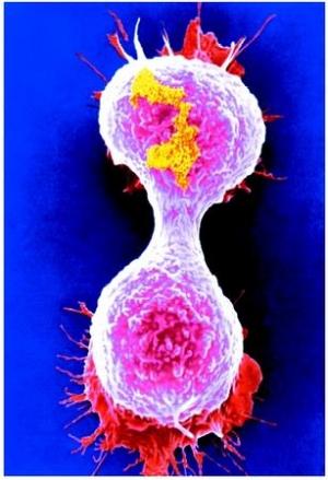 Фотография, делящейся клетки опухоли молочной железы. (кликните картинку для увеличения)