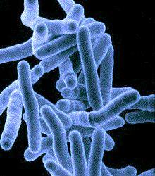Микрофотография Mycobacterium tuberculosis.