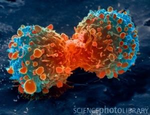 Деление раковой клетки лёгкого. (кликните картинку для увеличения)