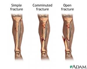 Виды перелома костей: (слева на право) простой (закрытый) перелом, осколочный перелом, открытый перелом. (кликните картинку для увеличения)