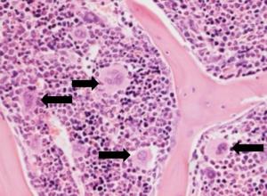 Срез костного мозга, на котором чёрными стрелками отмечены мегакариоциты – клетки, продуцирующие тромбоциты. (кликните картинку для увеличения)