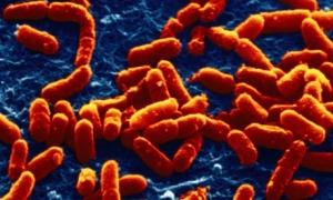 Снимок бактерий E. coli – наиболее изученного вида бактерий, населяющего кишечник теплокровных. (кликните картинку для увеличения)