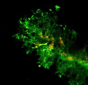 Визуализация разницы в проникающей способности наночастиц, покрытых полиэтиленгликолем (зеленый), по сравнению с наночастицами того же размера без покрытия (оранжевый) в мозге грызунов. (кликните картинку для увеличения)