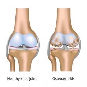 Схема поражения коленного сустава при остеоартрите. Слева здоровый сустав. Справа – поражённый болезнью. (кликните картинку для увеличения)