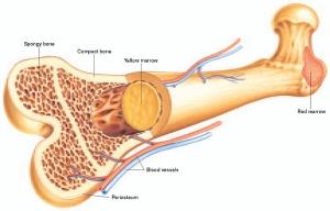 При множественной миеломе происходит поражение костного мозга. (кликните картинку для увеличения)