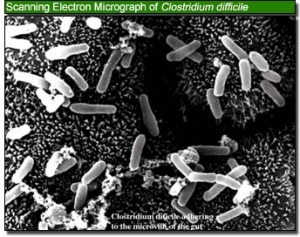 Бактерии <i>Clostridium difficile</i>. (кликните картинку для увеличения)