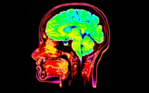 Головной мозг человека (выделен на снимке зелёно-жёлто-синим цветом). (кликните картинку для увеличения)
