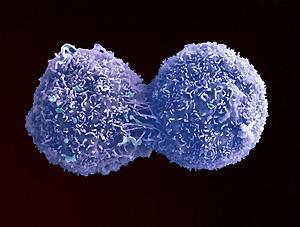 Деление раковой клетки лёгкого.