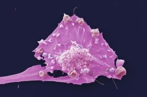 Клетка злокачественной опухоли молочной железы. (кликните картинку для увеличения)