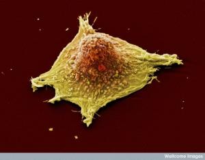 Клетка злокачественного новообразования лёгкого. (кликните картинку для увеличения)