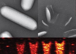 Изображение пузырьков <i>Anabaena Flos-aqueae</i>, а также полученные с их помощью УЗИ. (кликните картинку для увеличения)