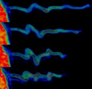 На снимке показано, как внутри филоподий сворачивается актин, когда они формируют спиралеобразную структуру. (кликните картинку для увеличения)