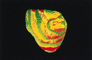 Аномальная электрическая активность сердца человека. (кликните картинку для увеличения)
