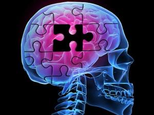 Смартфоны помогут искать лекарство от болезни Альцгеймера. (кликните картинку для увеличения)
