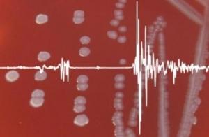 Бактерии в чашке и соответствующий им спектр. (кликните картинку для увеличения)